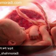 سقط جنين و مجازات آن
